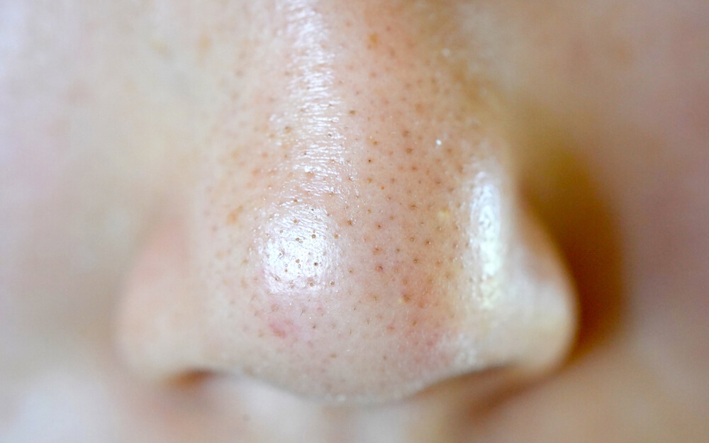 メラニン色素で黒ずんだの鼻