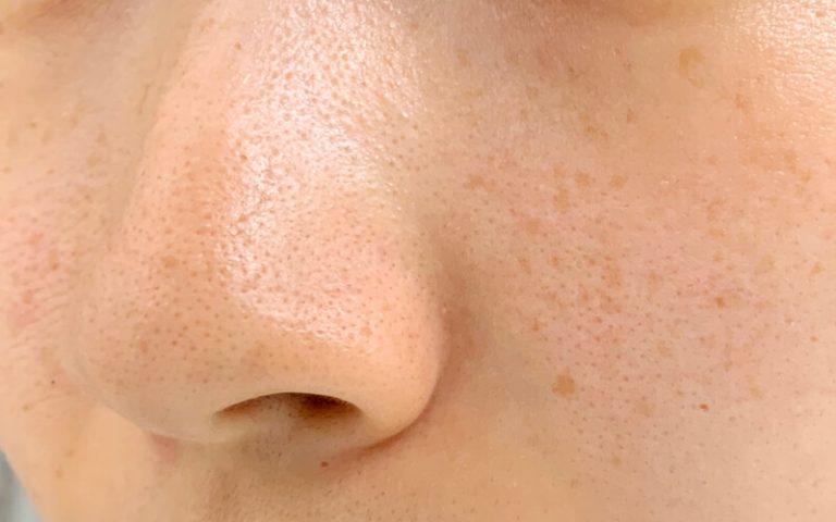 鼻のアップ